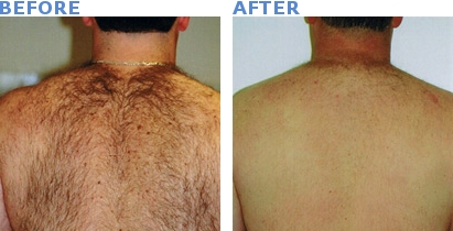 laser hair removal for men skin care treatments by bay