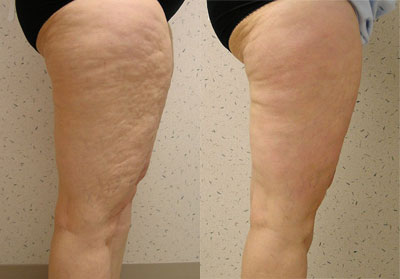 cellulite treatments before and after
