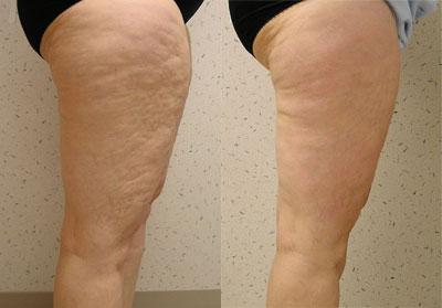 Криотерапия для похудения